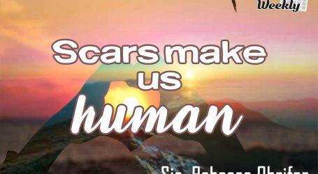 Scars Make Us Human